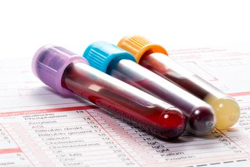 Top Reasons to Order Your Own Lab Tests